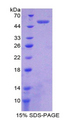 PSMC1 Protein - Recombinant Proteasome 26S Subunit, ATPase 1 By SDS-PAGE