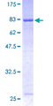 RABGEF1 Protein - 12.5% SDS-PAGE of human RABGEF1 stained with Coomassie Blue