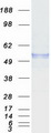 Purified recombinant protein RCBTB2 was analyzed by SDS-PAGE gel and Coomassie Blue Staining