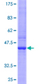 RGS13 Protein - 12.5% SDS-PAGE of human RGS13 stained with Coomassie Blue
