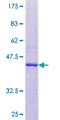 12.5% SDS-PAGE of human RNASE2 stained with Coomassie Blue