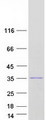 Purified recombinant protein RNASEH2B was analyzed by SDS-PAGE gel and Coomassie Blue Staining