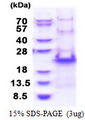 RPS20 / Ribosomal Protein S20 Protein