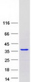 SETBP1 / SEB Protein - Purified recombinant protein SETBP1 was analyzed by SDS-PAGE gel and Coomassie Blue Staining
