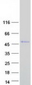 Purified recombinant protein SSBP4 was analyzed by SDS-PAGE gel and Coomassie Blue Staining