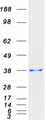 Purified recombinant protein SSR1 was analyzed by SDS-PAGE gel and Coomassie Blue Staining