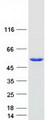 Purified recombinant protein TDP2 was analyzed by SDS-PAGE gel and Coomassie Blue Staining