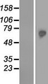 TKTL2 Protein - Western validation with an anti-DDK antibody * L: Control HEK293 lysate R: Over-expression lysate