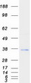 Purified recombinant protein TMX2 was analyzed by SDS-PAGE gel and Coomassie Blue Staining