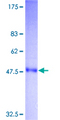TNF Alpha Protein - 12.5% SDS-PAGE of human TNF stained with Coomassie Blue