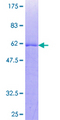 TP53TG5 Protein - 12.5% SDS-PAGE of human C20orf10 stained with Coomassie Blue