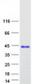 Purified recombinant protein VCX3A was analyzed by SDS-PAGE gel and Coomassie Blue Staining