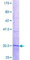 ZFAND3 / TEX27 Protein - 12.5% SDS-PAGE Stained with Coomassie Blue.