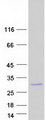 Purified recombinant protein ZMAT2 was analyzed by SDS-PAGE gel and Coomassie Blue Staining