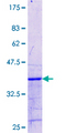 ZMAT3 Protein - 12.5% SDS-PAGE Stained with Coomassie Blue.
