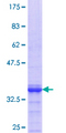 ZNF444 Protein - 12.5% SDS-PAGE Stained with Coomassie Blue.