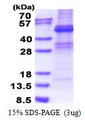 ZNF514 Protein
