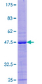 12.5% SDS-PAGE of human ZNF576 stained with Coomassie Blue