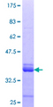 ZNF79 Protein - 12.5% SDS-PAGE Stained with Coomassie Blue.