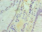 Immunohistochemistry of paraffin-embedded human colon cancer using antibody at 1:100 dilution.  This image was taken for the unconjugated form of this product. Other forms have not been tested.