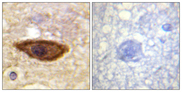 IFNAR1 / IFNAR Antibody - Immunohistochemistry analysis of paraffin-embedded human brain tissue, using Interferon-alpha/beta Receptor alpha chain Antibody. The picture on the right is blocked with the synthesized peptide.