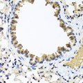 Immunohistochemistry of paraffin-embedded mouse lung using IFNL1 antibody at dilution of 1:100 (40x lens).
