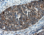 IHC of paraffin-embedded Adenocarcinoma of ovary tissue using anti-IFT57 mouse monoclonal antibody. (Dilution 1:50).