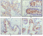 IHC of paraffin-embedded human lung cancer (A), recturn(B), prostate (C), colon cancer (D) showing cytoplasmic localization using IGFBP2 mouse monoclonal antibody with DAB staining.