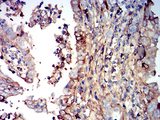 Immunohistochemical analysis of paraffin-embedded endometrial cancer tissues using IGHM mouse mAb with DAB staining.