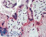 MMP3 Antibody - Anti-MMP3 antibody IHC of human placenta. Immunohistochemistry of formalin-fixed, paraffin-embedded tissue after heat-induced antigen retrieval. Antibody concentration 10 ug/ml.