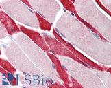 USP7 / HAUSP Antibody - Anti-USP7 antibody IHC of human skeletal muscle. Immunohistochemistry of formalin-fixed, paraffin-embedded tissue after heat-induced antigen retrieval. Antibody concentration 5 ug/ml.