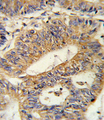 IL17RB Antibody - Formalin-fixed and paraffin-embedded human colon carcinoma reacted with IL17RB Antibody , which was peroxidase-conjugated to the secondary antibody, followed by DAB staining. This data demonstrates the use of this antibody for immunohistochemistry; clinical relevance has not been evaluated.