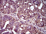 IHC of paraffin-embedded rectum cancer tissues using IL2RA mouse monoclonal antibody with DAB staining.