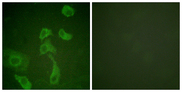 IL2RB / CD122 Antibody - Immunofluorescence analysis of HeLa cells, using IL-2R beta Antibody. The picture on the right is blocked with the synthesized peptide.