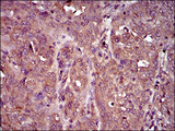 IHC of paraffin-embedded ovarian cancer tissues using IL3RA mouse monoclonal antibody with DAB staining.