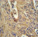 IL5RA Antibody immunohistochemistry of formalin-fixed and paraffin-embedded human lung carcinoma followed by peroxidase-conjugated secondary antibody and DAB staining.