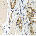IL9 Antibody - Immunohistochemistry of paraffin-embedded human stomach cancer tissue.