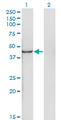 Western Blot analysis of INPP1 expression in transfected 293T cell line by INPP1 monoclonal antibody (M11), clone 4F9.Lane 1: INPP1 transfected lysate(44 KDa).Lane 2: Non-transfected lysate.
