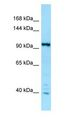 IPO7 / RANBP7 Antibody - IPO7 / RANBP7 antibody Western Blot of MCF7.  This image was taken for the unconjugated form of this product. Other forms have not been tested.