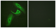 ITGB2 / CD18 Antibody - Immunofluorescence analysis of HeLa cells, using CD18/ITGB2 Antibody. The picture on the right is blocked with the synthesized peptide.