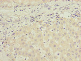 Immunohistochemistry of paraffin-embedded human liver tissue using JADE1 Antibody at dilution of 1:100