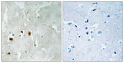 KAT5 / TIP60 Antibody - Immunohistochemistry analysis of paraffin-embedded human brain, using Tip60 (Phospho-Ser90) Antibody. The picture on the right is blocked with the phospho peptide.