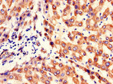 Immunohistochemistry of paraffin-embedded human liver tissue using CSB-PA774812LA01HU at dilution of 1:100