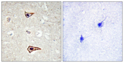 KCNA3 / Kv1.3 Antibody - Immunohistochemistry analysis of paraffin-embedded human brain, using Kv1.3/KCNA3 (Phospho-Tyr135) Antibody. The picture on the right is blocked with the phospho peptide.
