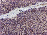 IHC of paraffin-embedded Carcinoma of Human bladder tissue using anti-KCNAB1 mouse monoclonal antibody. (Heat-induced epitope retrieval by 10mM citric buffer, pH6.0, 120°C for 3min).