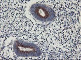 IHC of paraffin-embedded Human endometrium tissue using anti-KCNJ3 mouse monoclonal antibody.