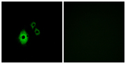 Immunofluorescence analysis of A549 cells, using KCNJ5 Antibody. The picture on the right is blocked with the synthesized peptide.