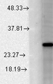 KCNMB2 Antibody - Western blot analysis of BK Beta2 in a human cell line mix using a 1:1000 dilution of KCNMB2 antibody.  This image was taken for the unconjugated form of this product. Other forms have not been tested.