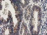 KCTD14 Antibody - IHC of paraffin-embedded Adenocarcinoma of Human endometrium tissue using anti-KCTD14 mouse monoclonal antibody. (Heat-induced epitope retrieval by 10mM citric buffer, pH6.0, 100C for 10min).