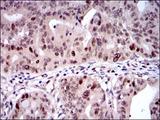 KIF22 / OBP Antibody - IHC of paraffin-embedded rectum cancer tissues using KID mouse monoclonal antibody with DAB staining.